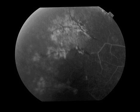 eyemds_Behcet_Retina_Clinic_10.jpg