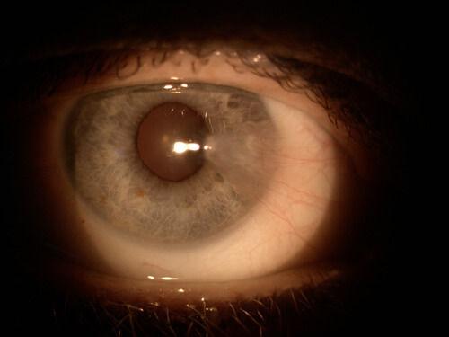 Cataract_Atlas_Pterygium_1.jpg