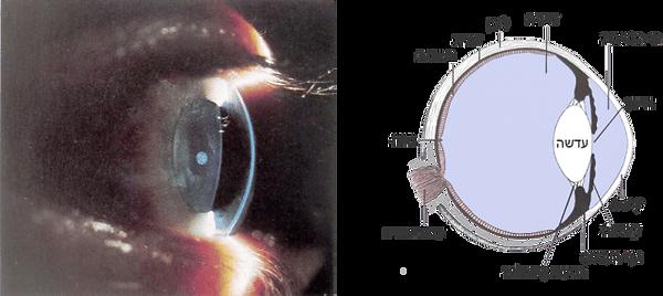 Eye_Science_8.png