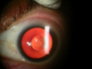 Cataract_Surgery_toric_Intraocular_Lens_