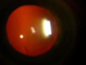 Retina_Cataract_Surgery_ATLAS_2_FHI_3.jp