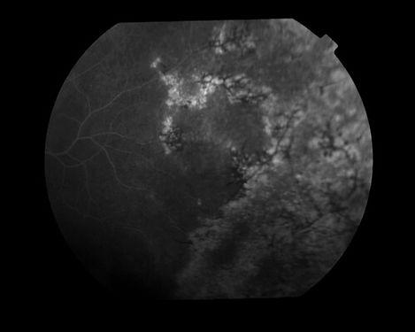 eyemds_Behcet_Retina_Clinic_9.jpg