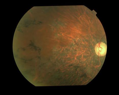 eyemds_Behcet_Retina_Clinic_3.jpg