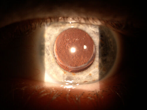 _ATLAS_4_6_post_cataract_PCO_posterior_c
