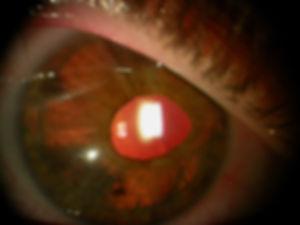 Retina_Cataract_Surgery_ATLAS_3_HIA.jpg