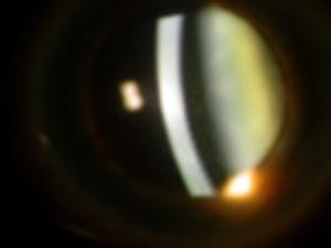 Retina_Cataract_Surgery_ATLAS_2_FHI