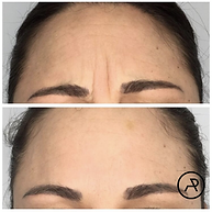 Coolsculpting before and after best results on Long Island