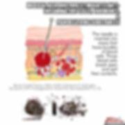 Current of Injury Meme EMA (1).jpg