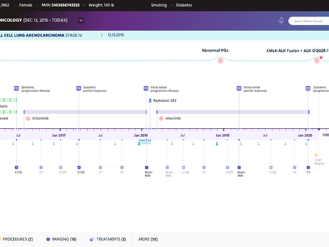 Timeline concept Axure Demo