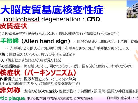 大脳皮質基底核変性症(CBD):手がうまく使えない、指先の運動が困難になる、ぎこちない、不器用になった:他人の手徴候(Alien hand sign):日本認知症ネットワーク