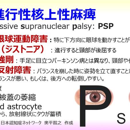 進行性核上性麻痺(PSP):下方を見ることがしにくい、転びやすい、しゃべりにくい:日本認知症ネットワーク
