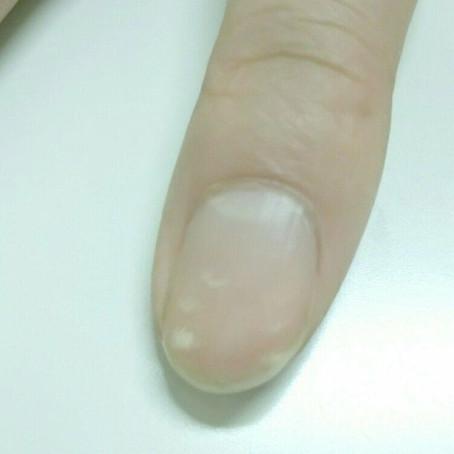 爪の白いテンテン。亜鉛欠乏女子(アケジョ)?亜鉛を補うと消えていく。鉄欠乏女子(テケジョ)に多い。美容・抗炎症・免疫に大切