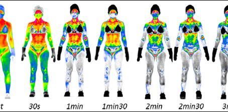 Individualisierung der Kältetherapie anhand des Geschlechts