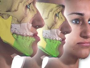 Cirurgia Ortognática: quando é indicada e como funciona o procedimento