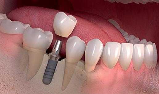 Immediate-Loaded-Dental-Implants-thumb-2