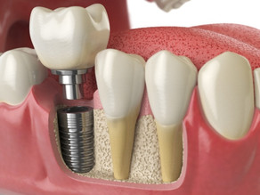 Você sabe o que são implantes dentários?