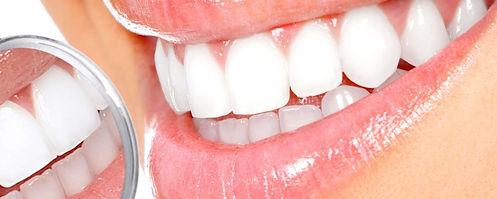 clareamento-dental-1200x480.jpg