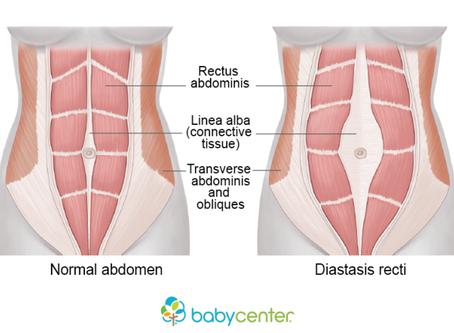 Diastasis recti, a secret struggle