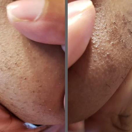 *Chin Update Round #2* (Super Excited) - Get Rid of Facial Hair