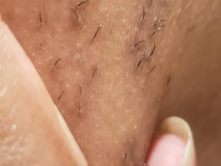 Update Testing (Weird Cluster hair spot R1) - Get Rid Of The Facial Hair