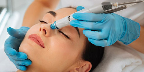 hydrafacial-treatment-review-1537977042.
