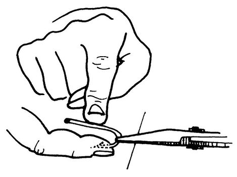 Removing an impaled fish hook from a finger. Use the flicker method for removing small, deeply imbedded fish hooks.