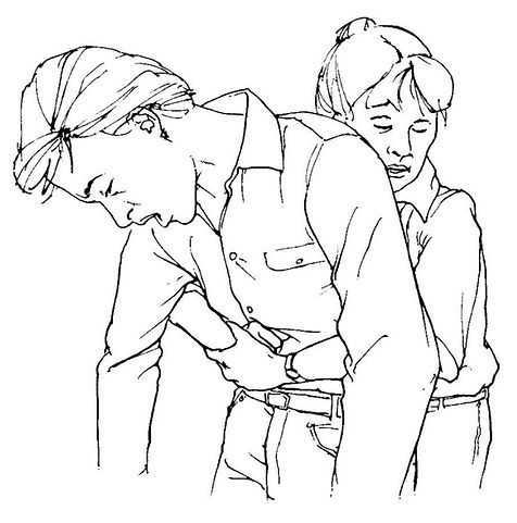 Hand position for abdominal thrusts on a conscious choking victim.