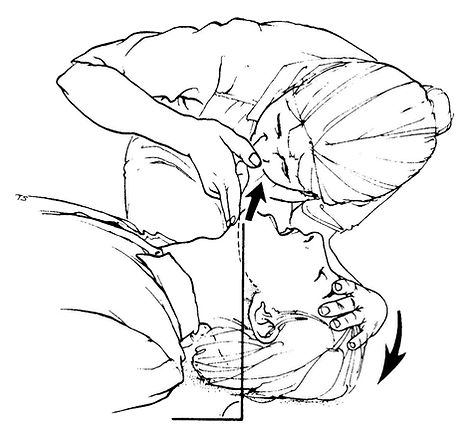 Use the head-tilt chin-lift method to open the airway.