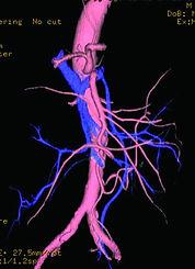 Angio, 血管像