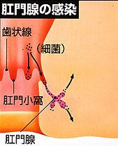 肛門腺感染
