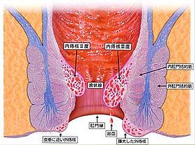 痔核の種類