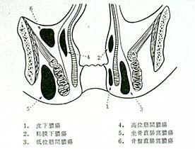 痔瘻肛門図