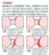 内痔核の段階