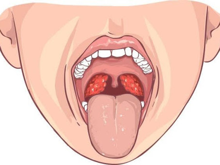 Open wide, It's tonsil time!