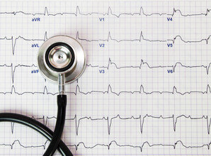 Job stress and heart rate variability