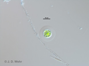 Asterococcus cf. limneticus