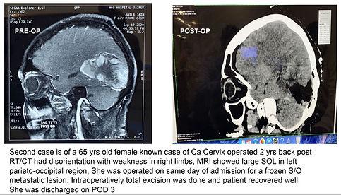 Recent Cases 2.JPG