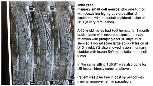 Recent Cases 3.JPG