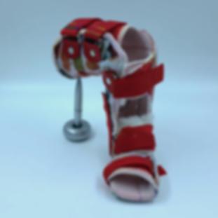 Oberschenkel Klumpfuss Orthese mit Knieg