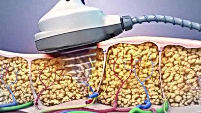 cavitation epidermas skin layer.jpg