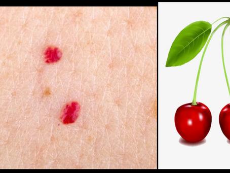 ¿Qué son los puntitos rojos en la piel?