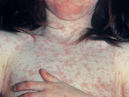 ¿Sabes cómo se ve el sarampión en tu piel?