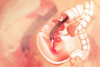 stock-photo-colon-cancer-colonoscope-in-