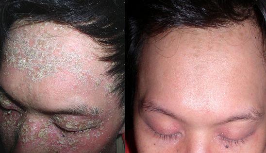 8 Weeks of Treatment