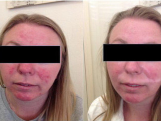 HerCanberra's Article: 5 Common Skin Conditions You May Not Know You Have