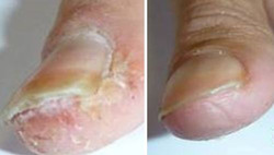 Psoriatic nails & fungal involvement