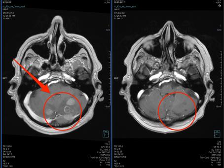 Радиохирургия в лечении опухолей головного мозга