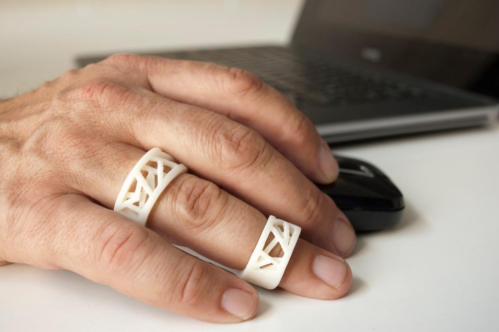 Exo finger cast
