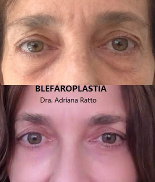 BLEFARO SUP+INF+TRANSPOSICION DE GRASA +