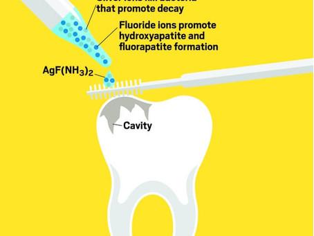 The preschooler vs. the dentist, Part 2